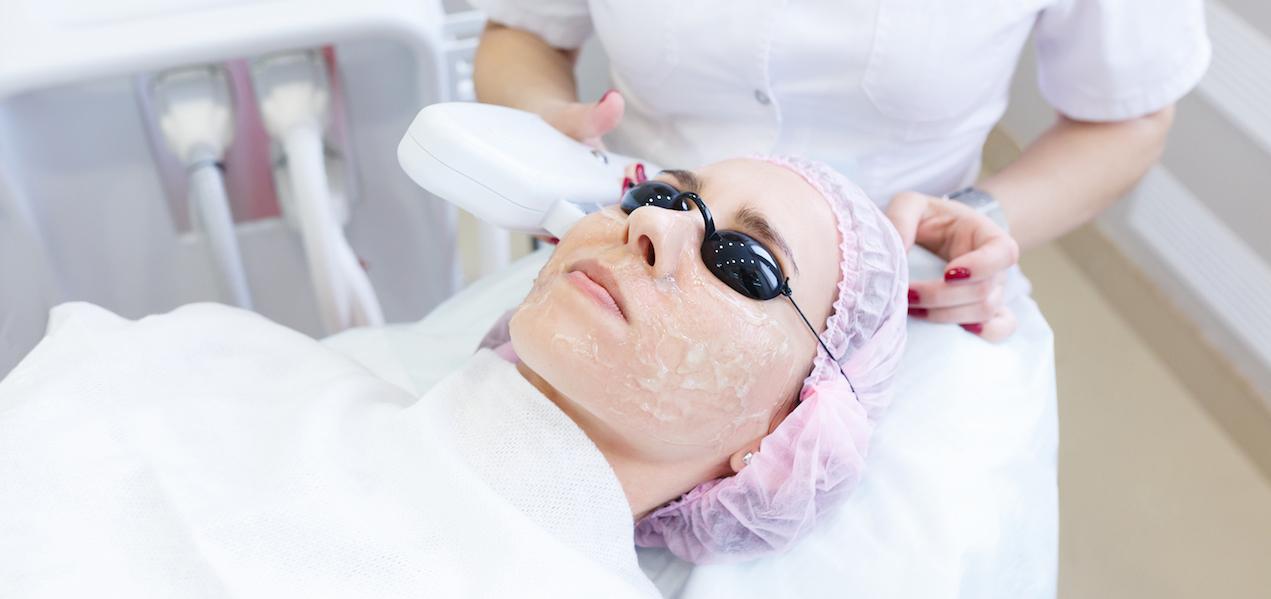 Behandlung von Couperose bei Schöner Körper-the easy way of beauty