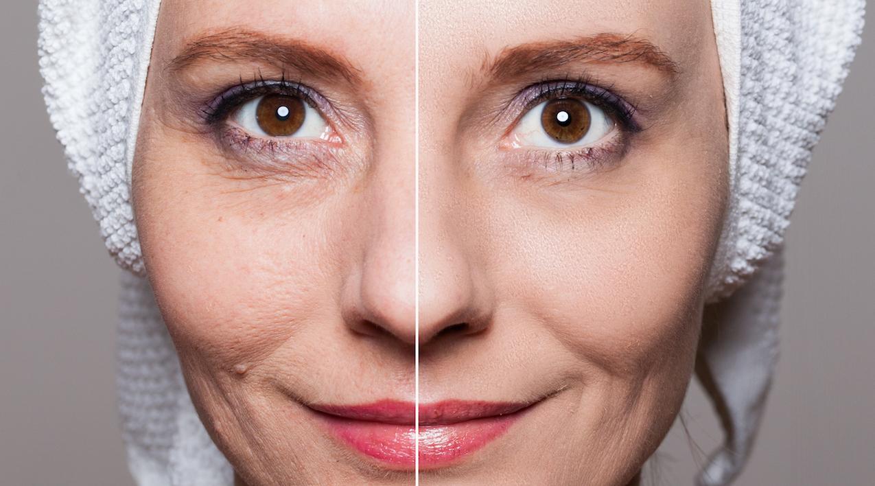 Verkleinerung der Poren und Hauterneuerung bei Schöner Körper-the easy way of beauty