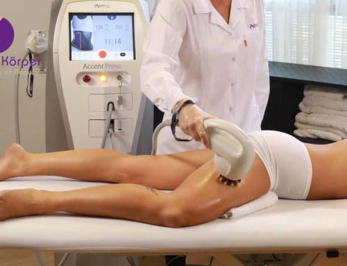 Cellulitebehandlung mit modernster Technologie von Alma Lasers®